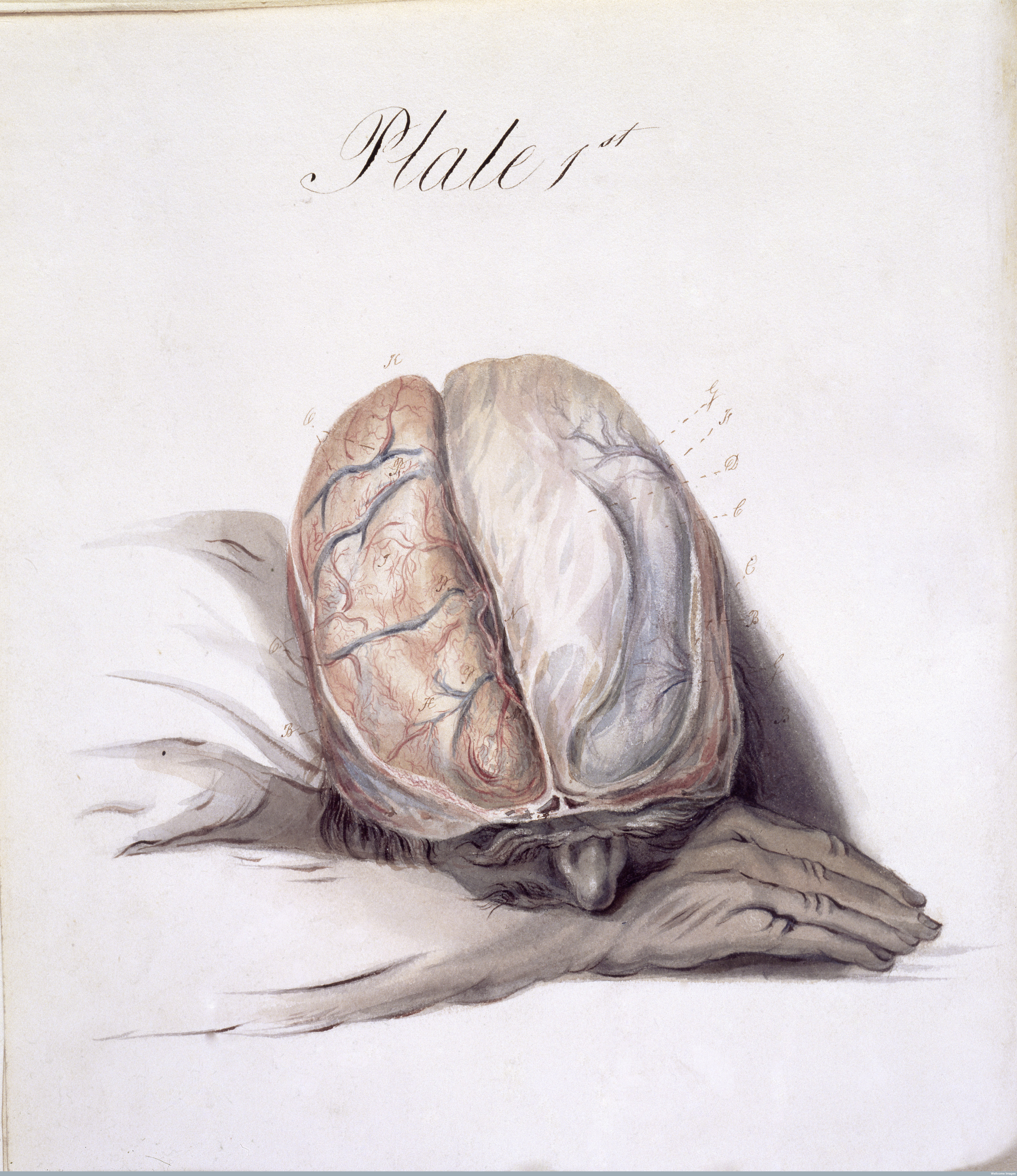 A 19th-century watercolor redrawn from Sir Charles Bell's The Anatomy of the Brain. Modern psychiatry has adopted the chemical imbalance theory of depression. (Wellcome Library, London)