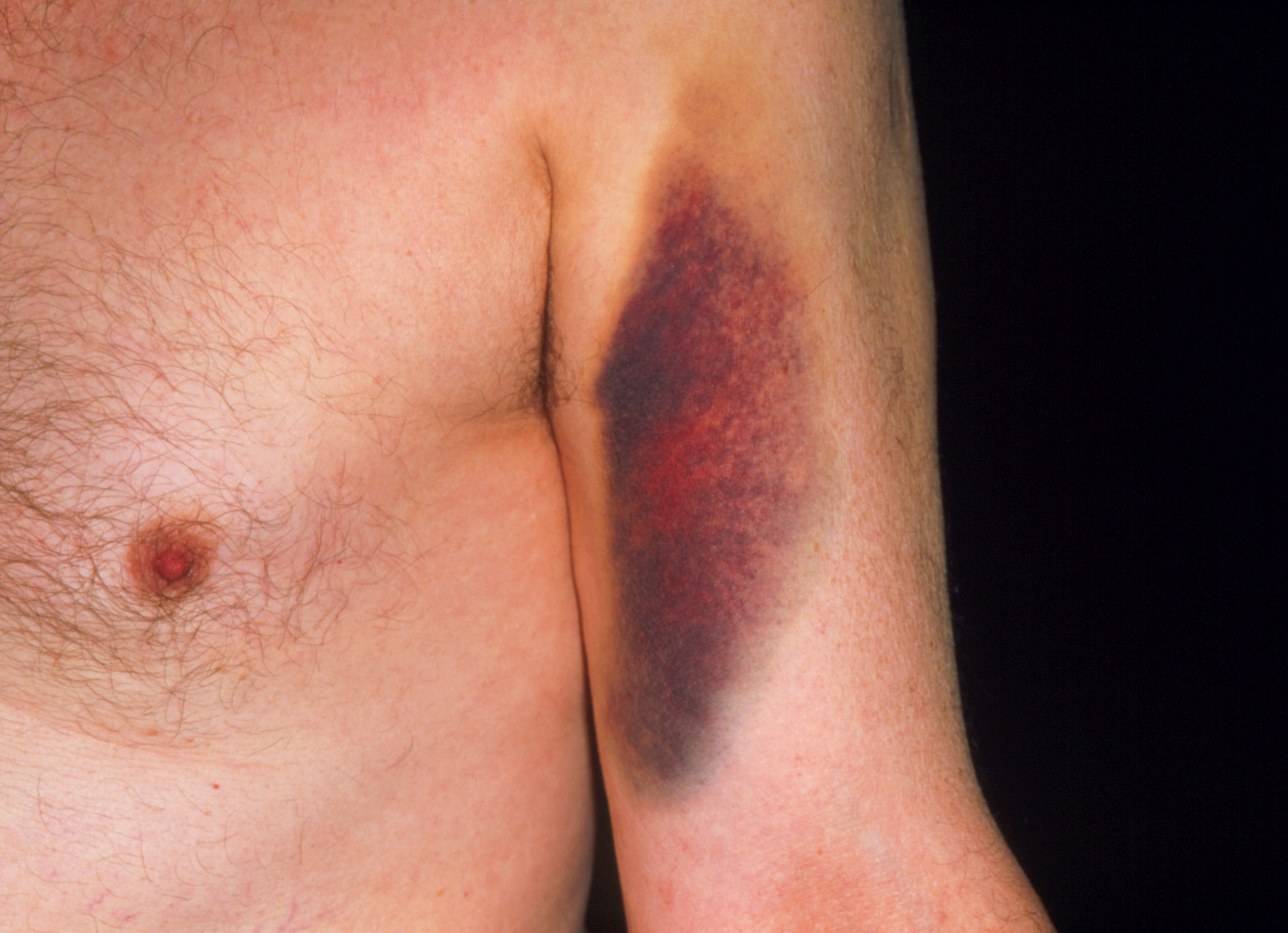 Bruising caused by warfarin. Among older adults complications from warfarin use cause the most drug-related visits to the emergency department.