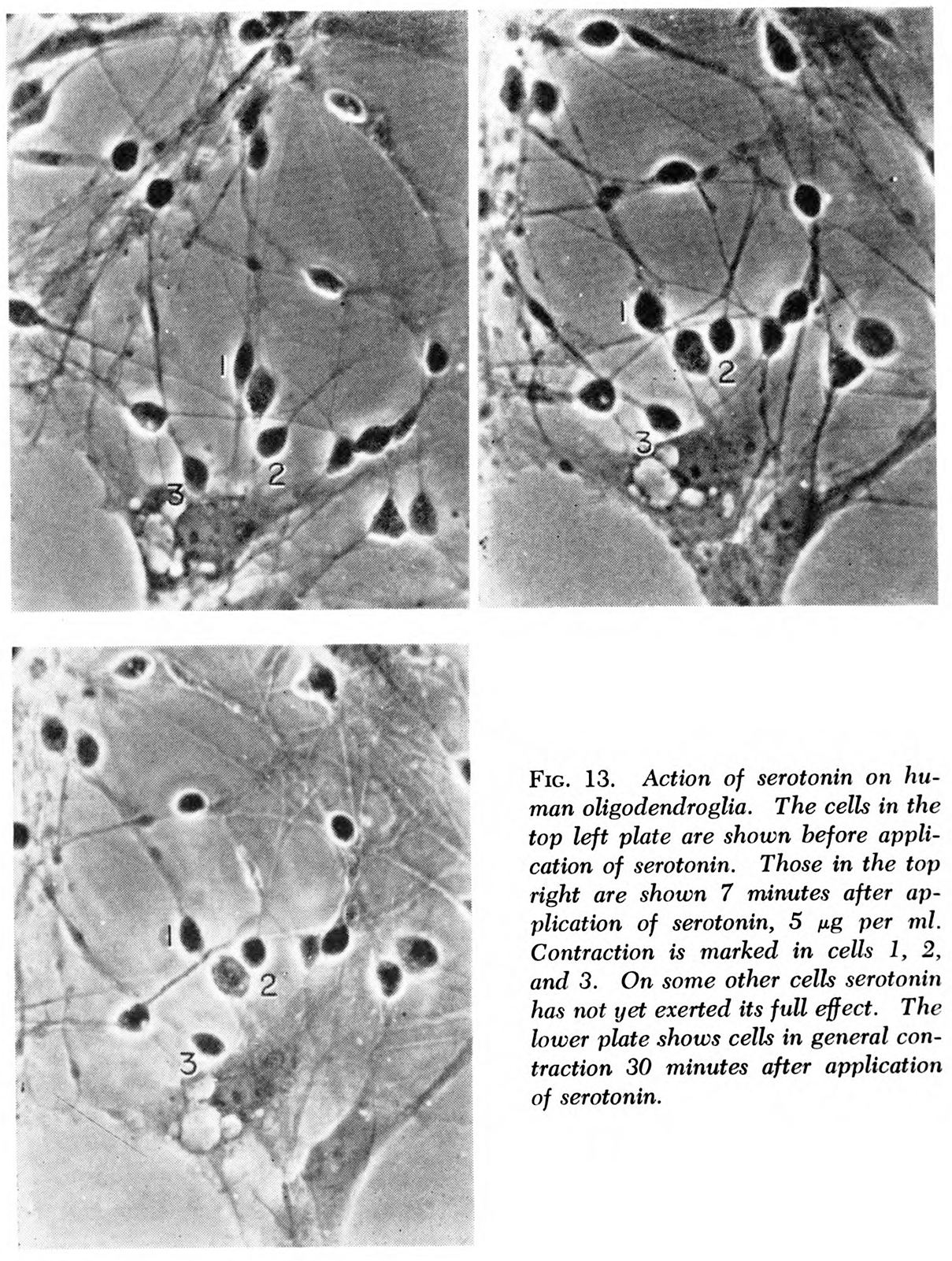 microscopic slides showing brain cells