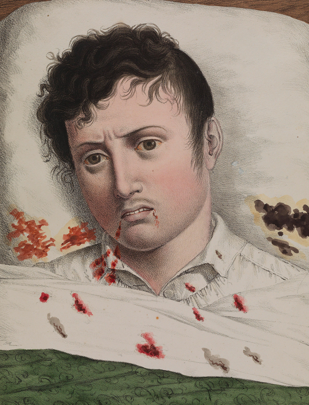 color lithograph of sick man