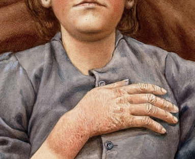 Illustration of a young woman with skin lesions