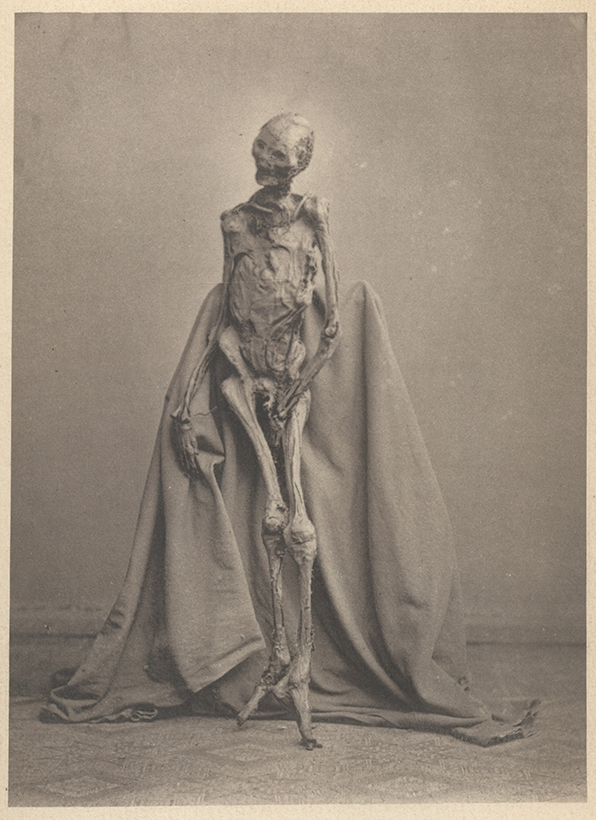 Rendswuhren Man's remains posed