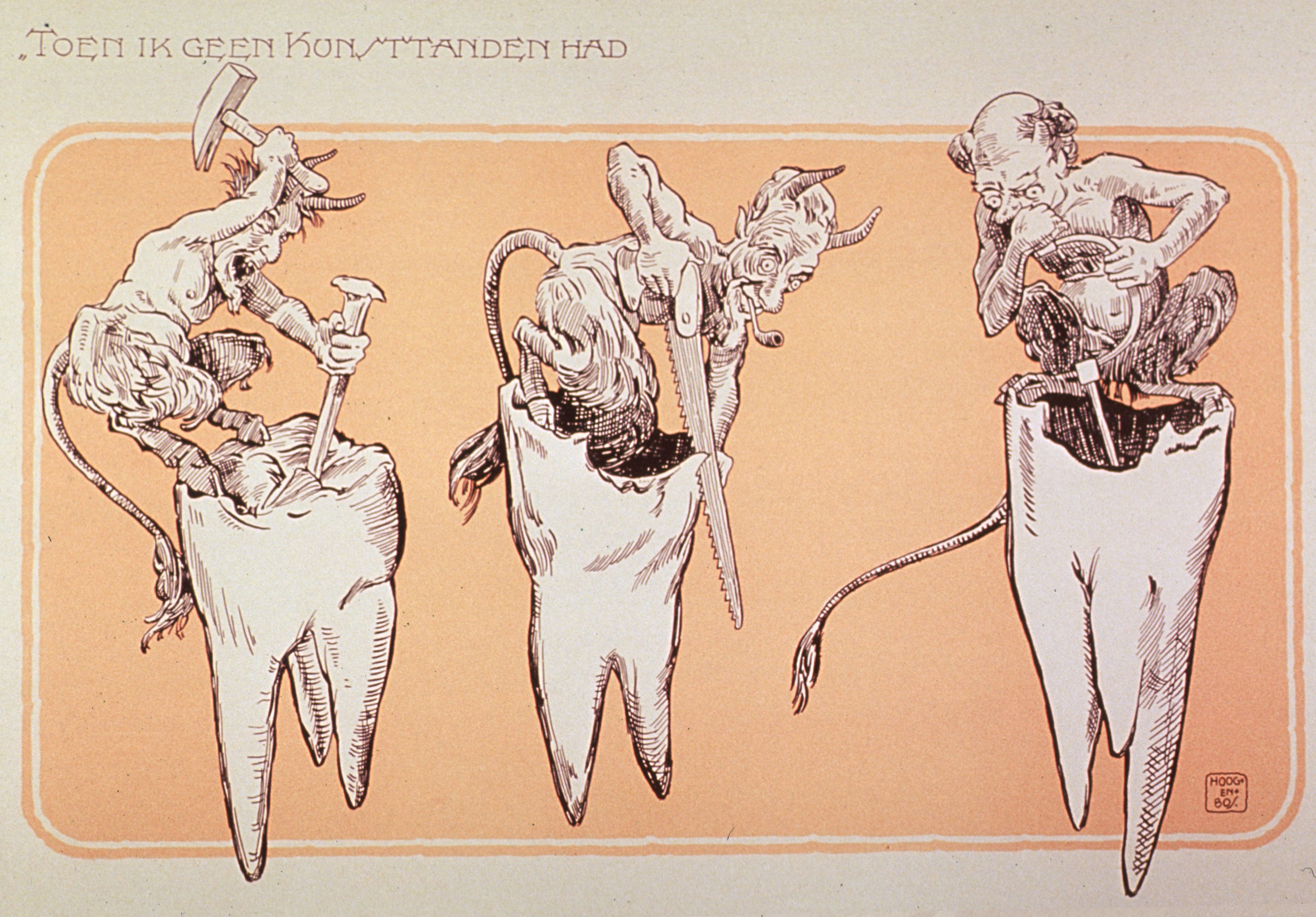 Dutch caricature of tooth decay